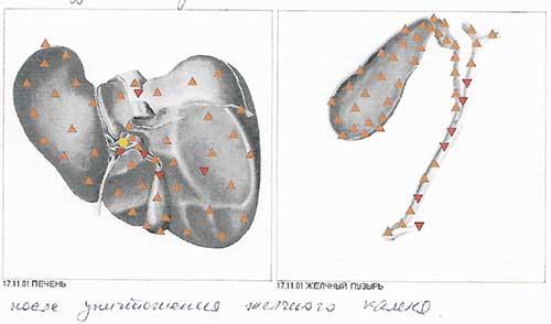 Начало работы с организмом. Как я познакомился с многомерной медициной и первые успехи при восстановлении организма.