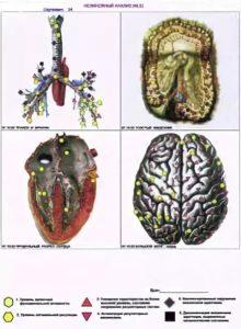 Аппарат диагностики Человека