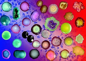 Удаление паразитов из организма .Избавление от глистов. Устранение глистных инвазий, простейших, вирусов, бактерий и грибков методом многомерной медицины.