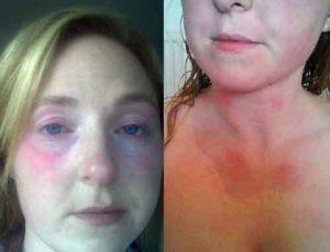 Что такое аллергия на воду и что с этим делать, из-за чего она возникает, и как можно снизить или полностью убрать ее проявления. Виды аллергий.